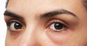 caffeina glaucoma